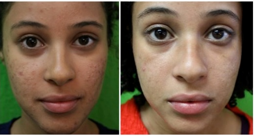 Acne and Acne Scar Removal: An Answer To Self-Conscious Feelings