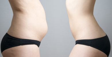 What Is A Tummy Tuck