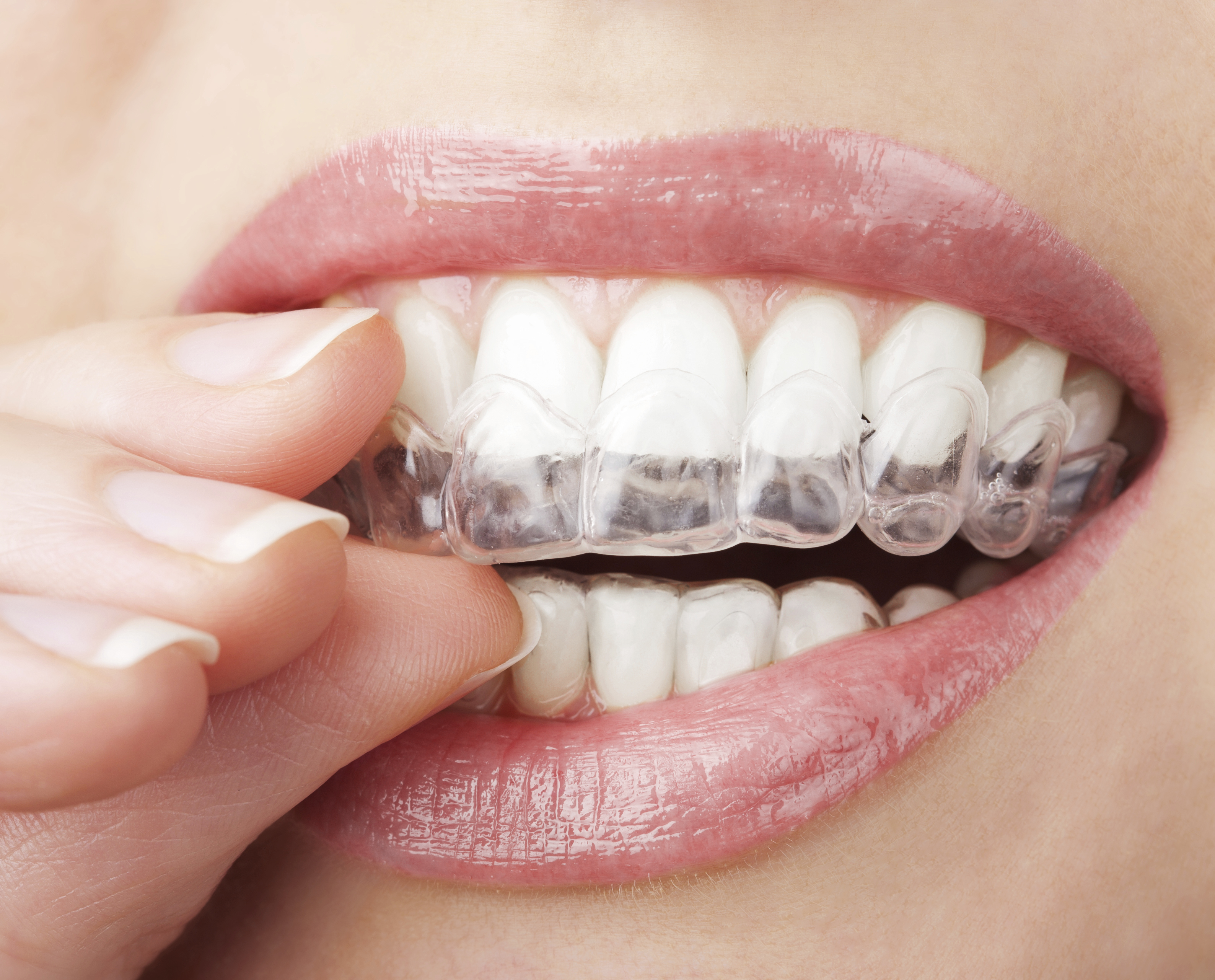 Consider Invisalign As The Best Advancement In Dental History
